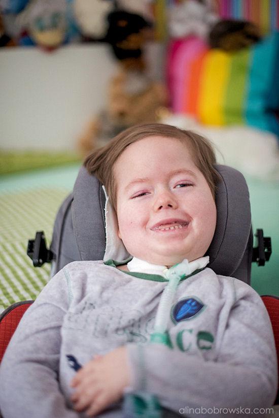 Tomasz Bojar-Fijałkowski: Niepełnosprawne rodziny cudownych dzieci